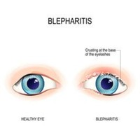 Ingrijirea pacientului cu blefarita